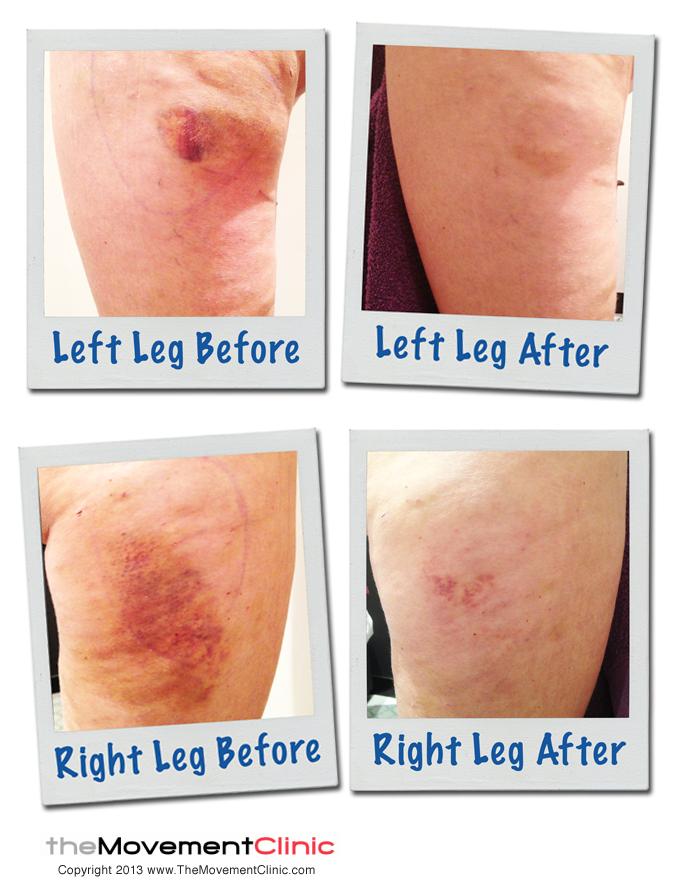 Leg_MLD_Treatment1