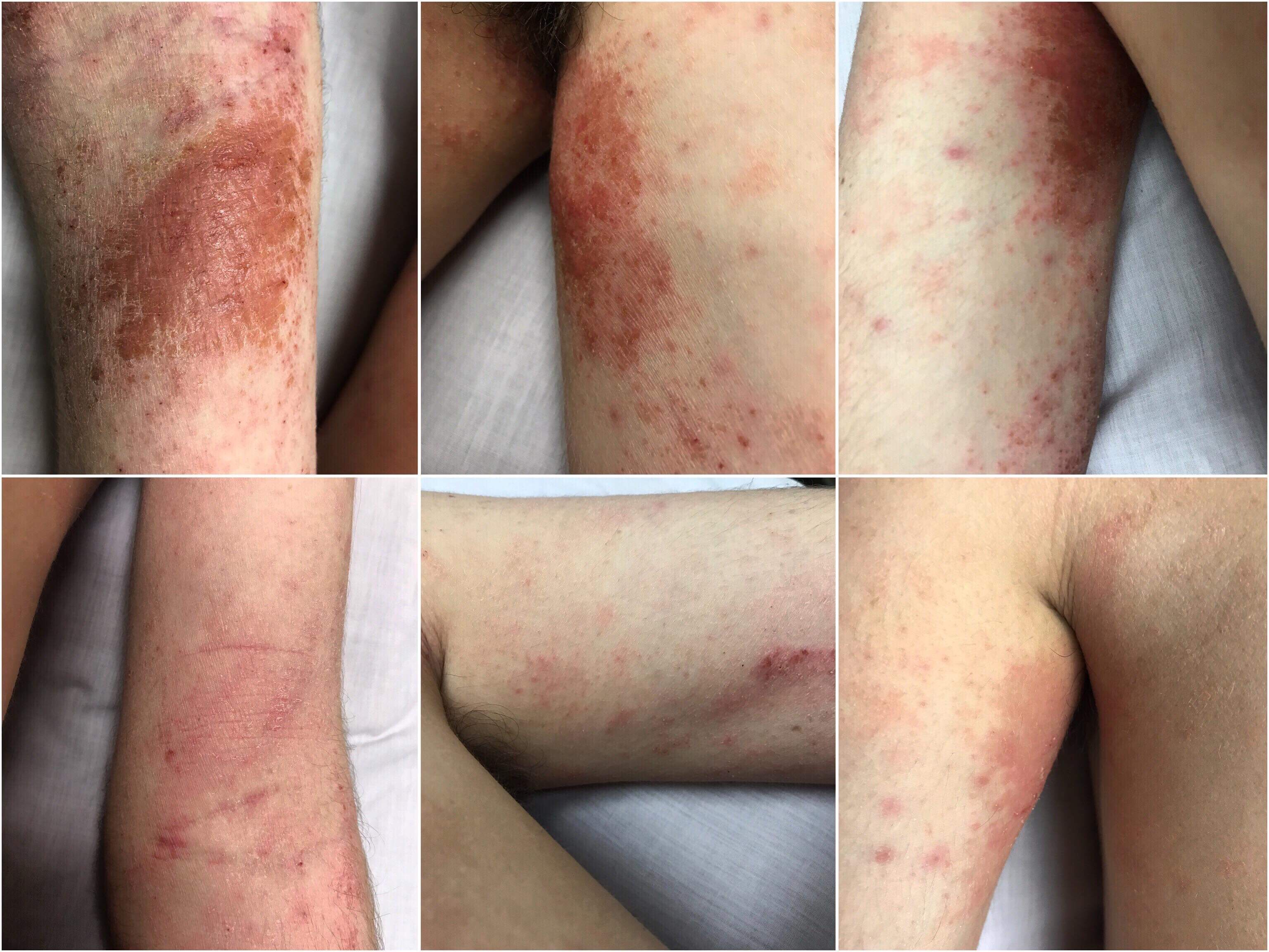 Topical Steroid Withdrawals The Movement Clinic The
